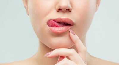 Грешките, които допускате при грижата за устните